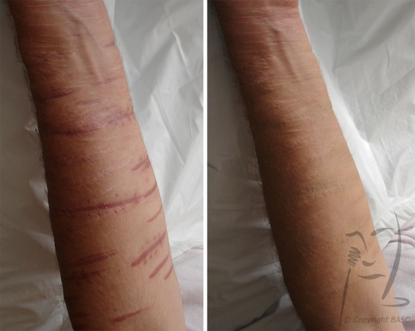 Scars resulting from self harm © BASC member 2303.