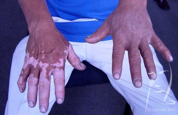 Vitiligo, left hand with camouflage applied © BASC member 2160.
