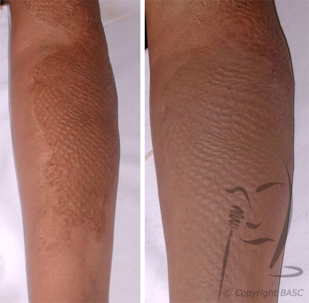 Mesh graft. Camouflage cannot alter the structure of the skin.