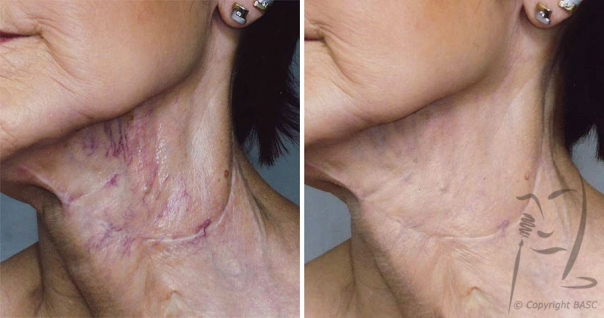 Vascular malformation and atrophic scarring following surgery © BASC member 1022.