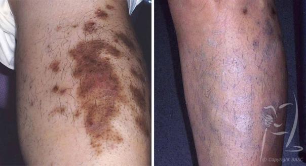 Hyperpigmented skin lesion © BASC Member 1022.