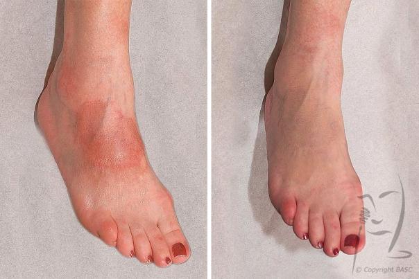 Erythematous skin lesion.