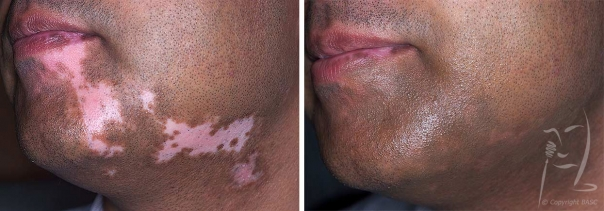 Hypo-pigmentation: Skin camouflage also used to create beard shadow.